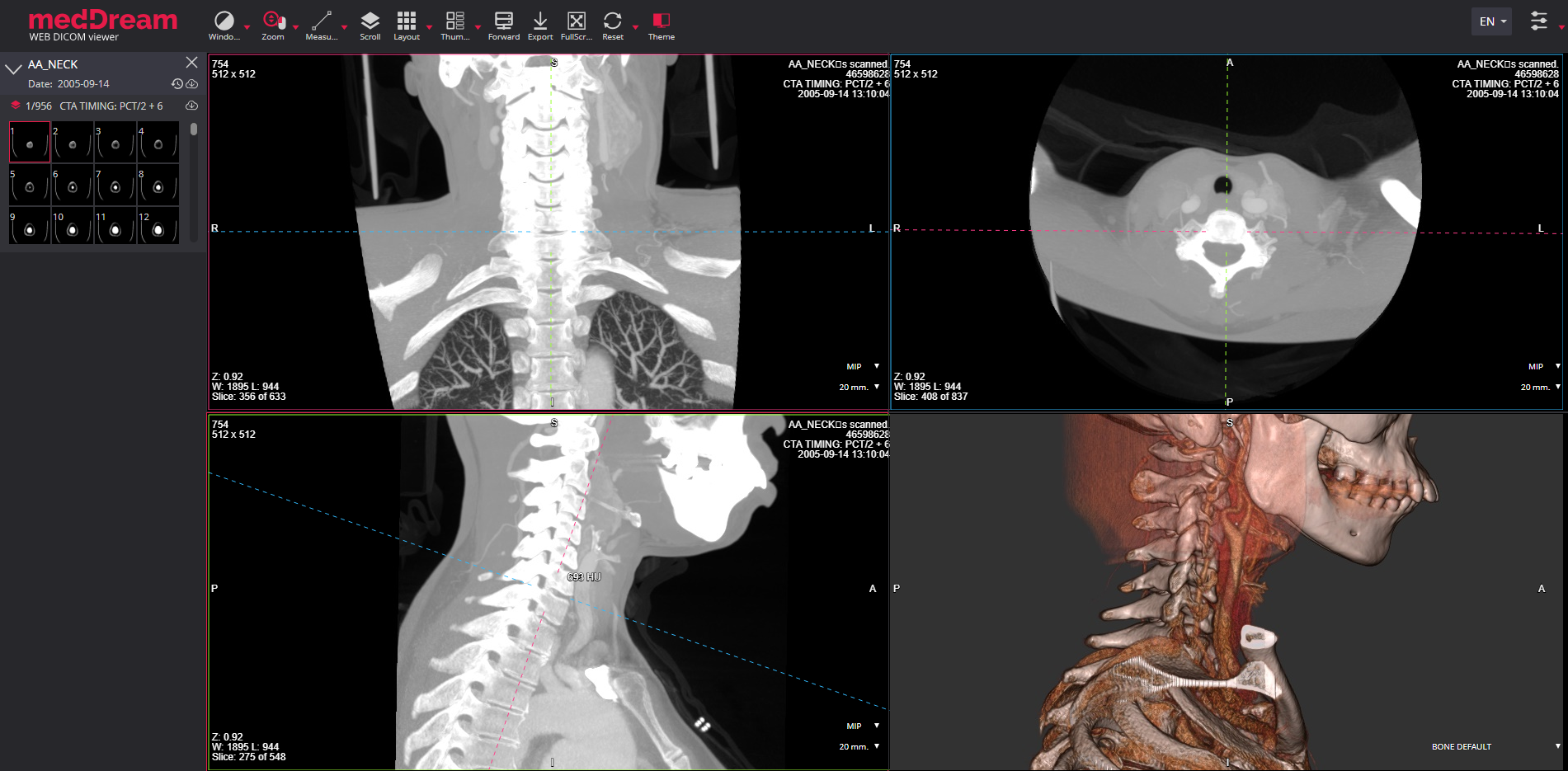 MedDream Dicom Viewer 3D module