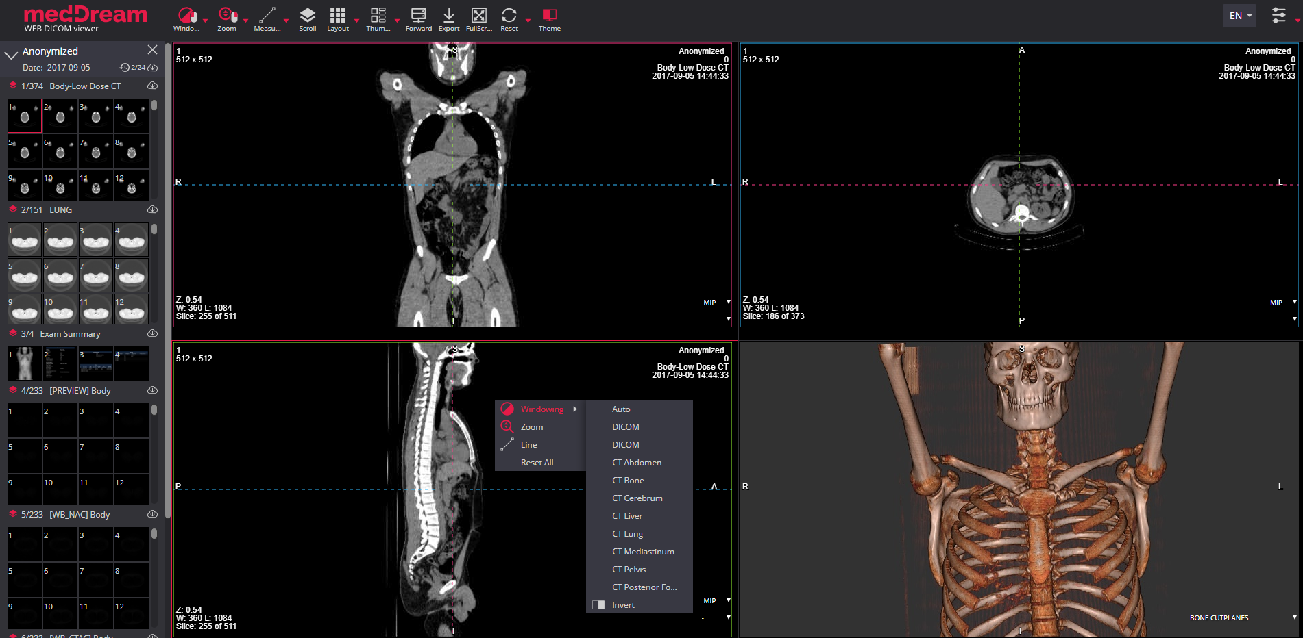 MedDream Dicom Viewer 3D option