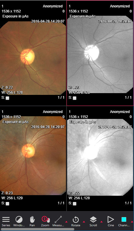 Opthalmology HTML5 Dicom viewer MedDream mobile channels
