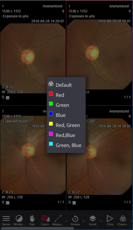 Opthalmology HTML5 Dicom viewer MedDream mobile