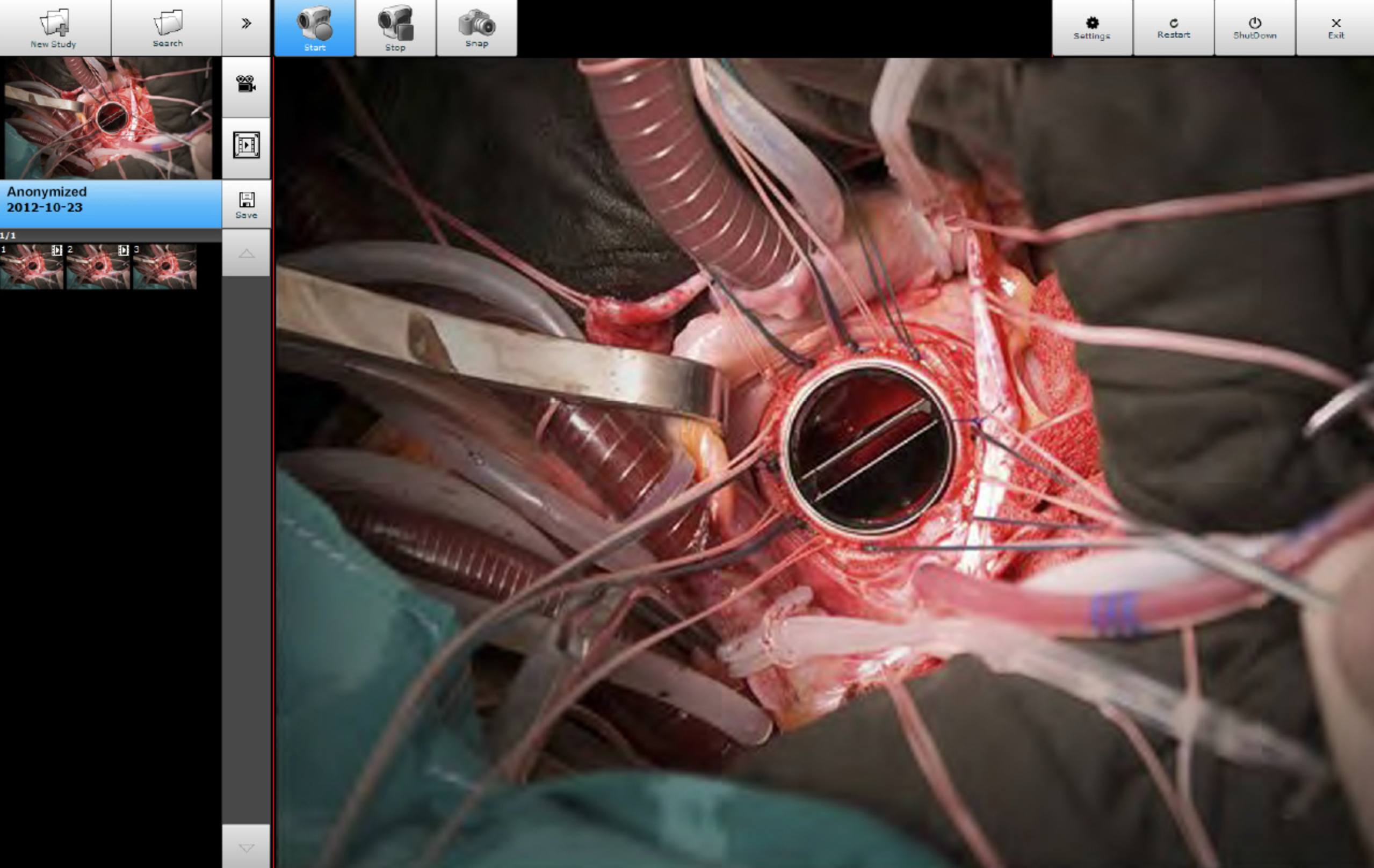 video station recording during surgery screenshot