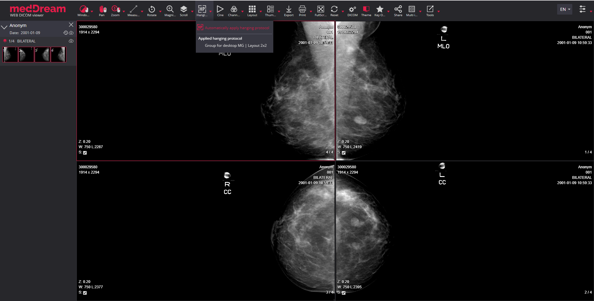 meddream dicom viewer hanging protocols