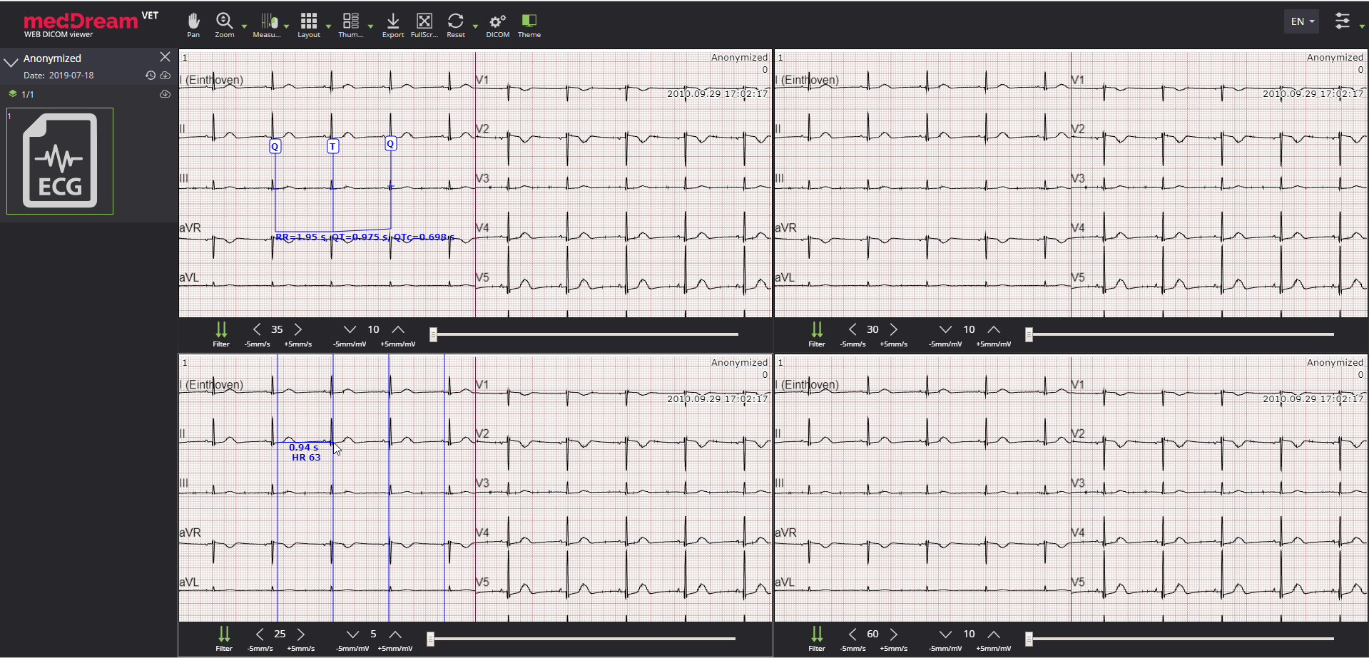 MedDream VET Dicom Viewer ECG