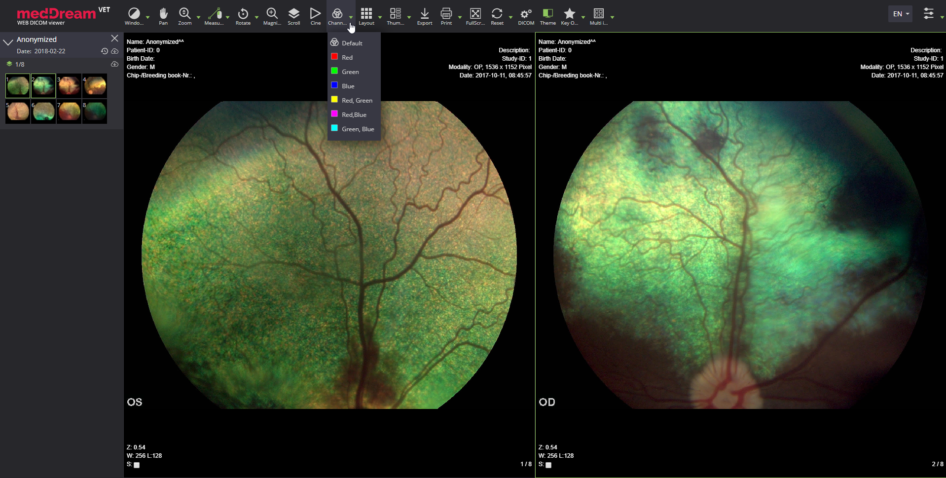 MedDream Vet Dicom Viewer Fundus Dog Eyes