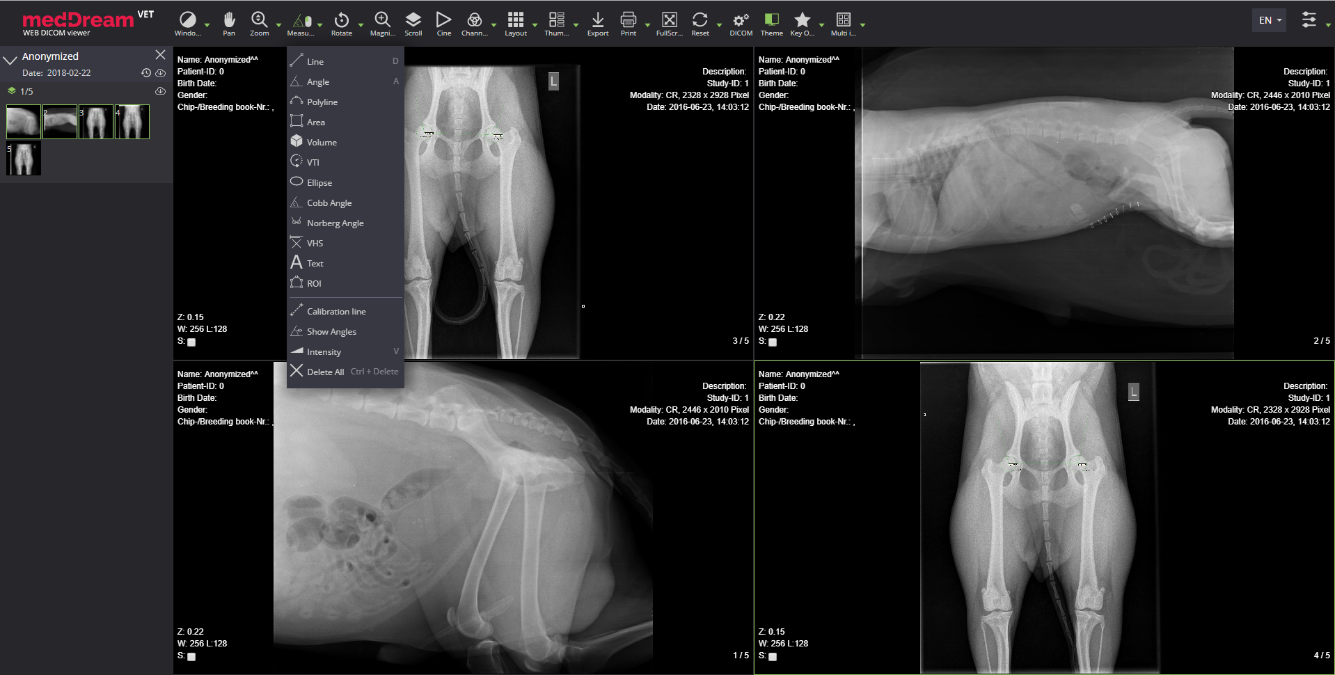 Meddream Vet Dicom Viewer Radiology Measure
