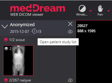 Meddream Dicom Viewer Patient History