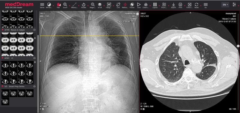 Pneumonia Ct Covid19 Lungs Meddream Dicom Viewer