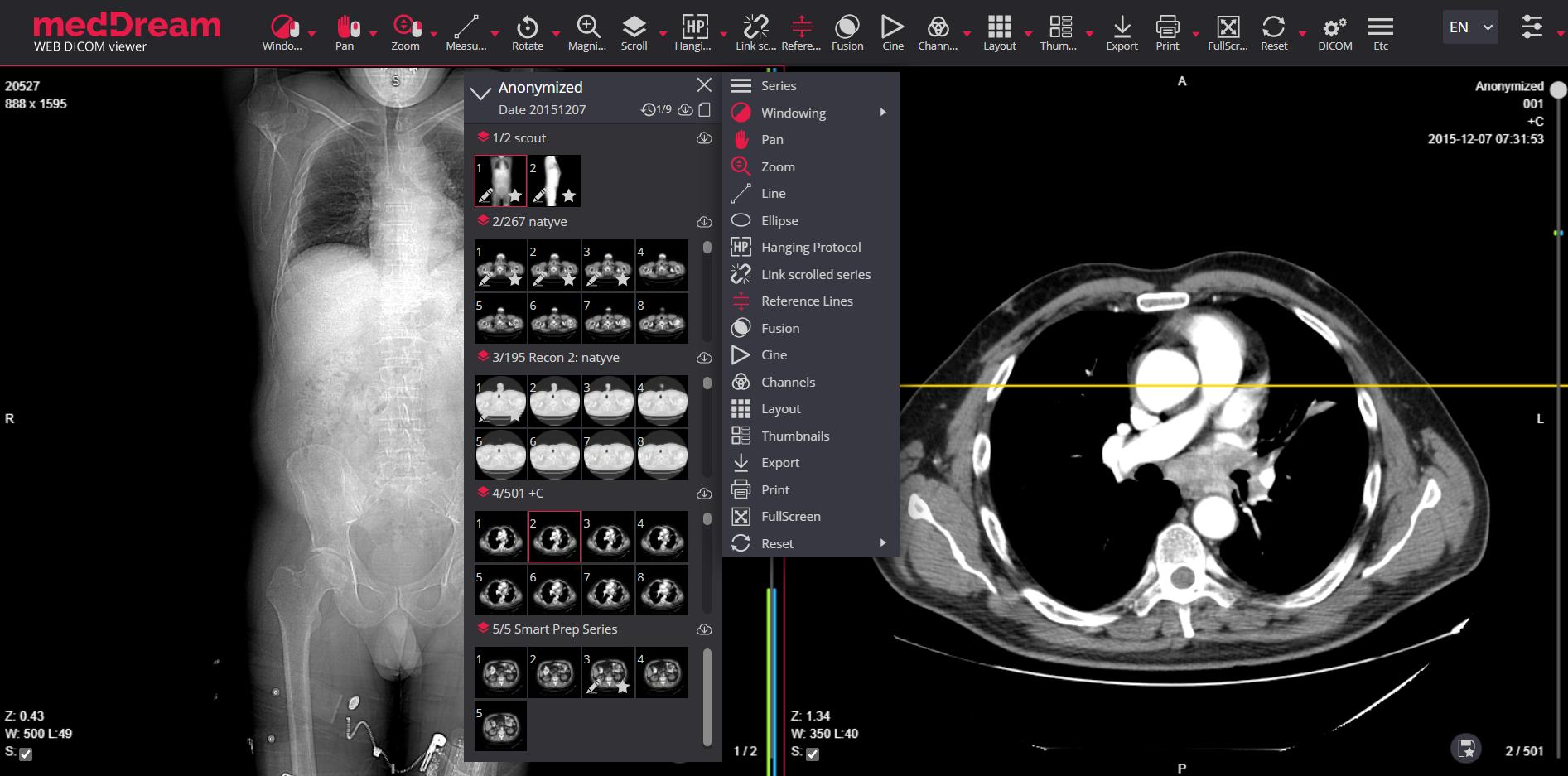 Meddream Dicom Viewer Quick Menu Thumbnails