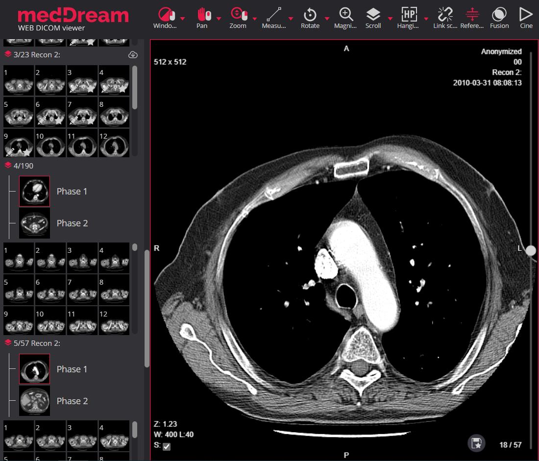 Meddream Dicom Viewer With Ct And Mri Phases